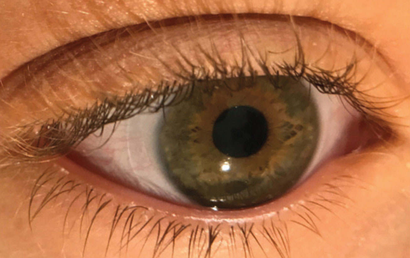 This patient's larger-than-average horizontal visible iris diameter led to contact lens intolerance with traditional soft lenses. Her OD took the time to design a toric lens with an increased diameter, which did the trick.