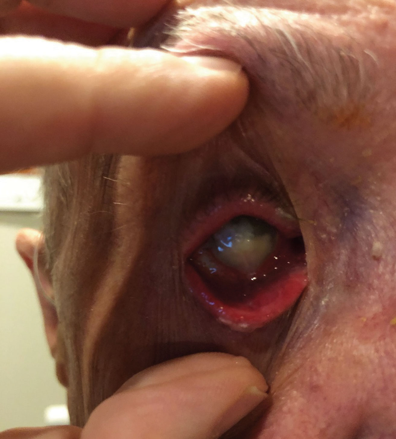 This patient presented with severe pain secondary to endophthalmitis that he developed after being noncompliant following a corneal transplant.