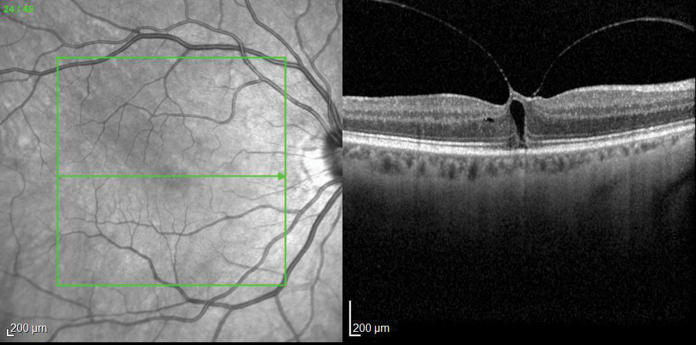 Fig. 3. OCT imaging revealed an impending macular hole as the cause of this patient's visual complaints.
