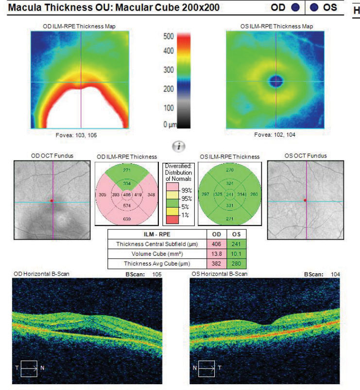 Fig. 8. This macular cube image demonstrates a patient with RPE disruption with CSCR.