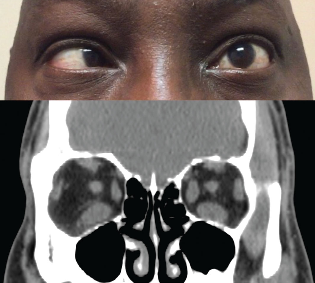 Fig. 2. Above, restricted movement of the left eye in temporal gaze. Below, coronal CT scan of the orbits shows an increased thickness of the left medial rectus and both inferior recti.