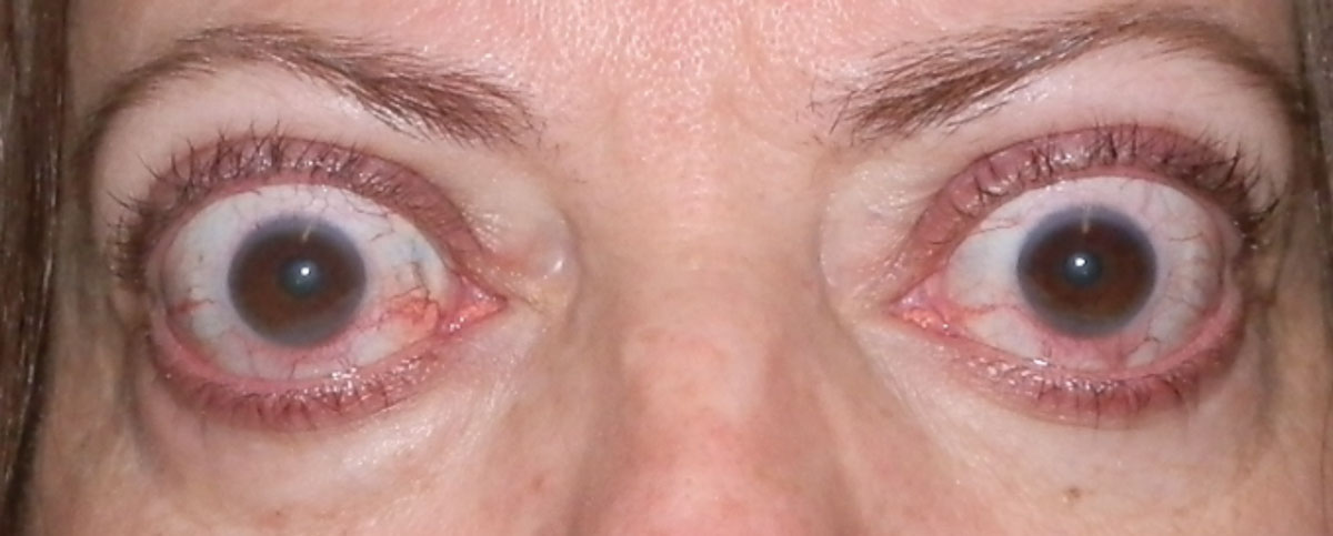 Fig. 3. Upper eyelid retraction and proptosis in a patient with orbital congestion (conjunctival injection) in the active phase.