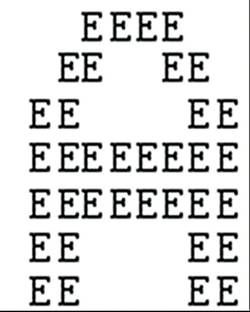 The SA patient will look at this image and see the smaller letters Es, but not the larger A they make up.