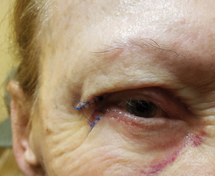 Post-op overcorrection of ptosis could cause upper eyelid retraction and exposure keratitis.