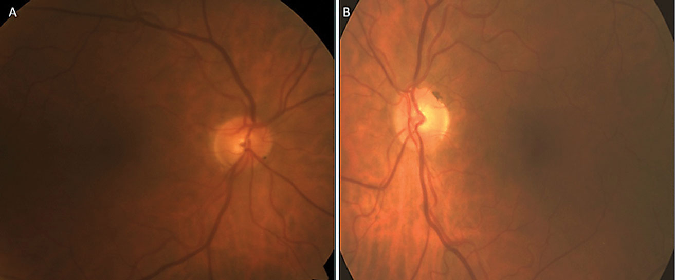 This optic nerve fundus photo reveals significant focal thinning at 7 o'clock OD (A) and moderate generalized cupping without focal rim thinning OS (B).