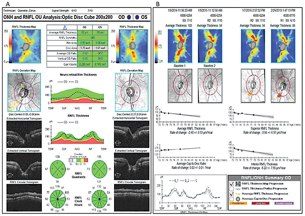 OCT RNFL analysis shows focal inferotemporal RNFL loss OD (A), while RNFL guided progression analysis shows steep negative slopes of the inferior RNFL thickness OD, more so than the average and superior thicknesses (B).