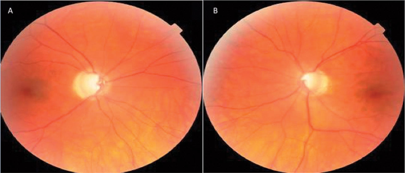This patient's optic nerve fundus photo indicates evidence of glaucomatous thinning and cupping, and papapapillary atrophy OD (A) and OS (B).