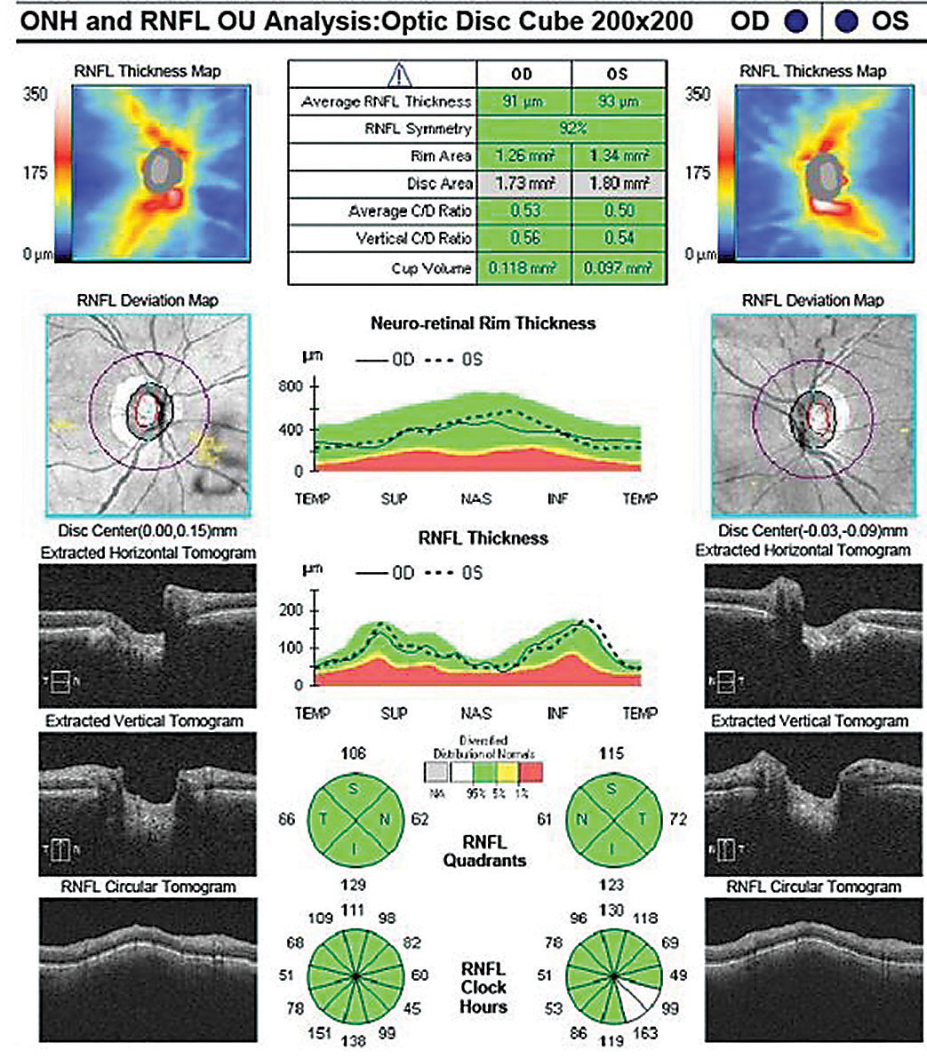 This retinal nerve fiber layer OCT scan shows a normal TSNIT graph, normal quadrant and sectoral tomogram, and robust thickness maps OU.