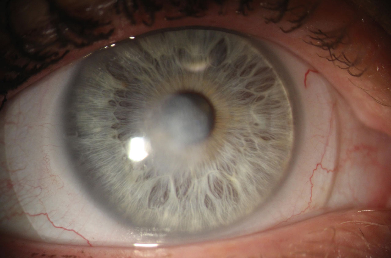 This cornea shows a central depressed opacity after the resolution of a fungal ulcer. Note the scleral lens.