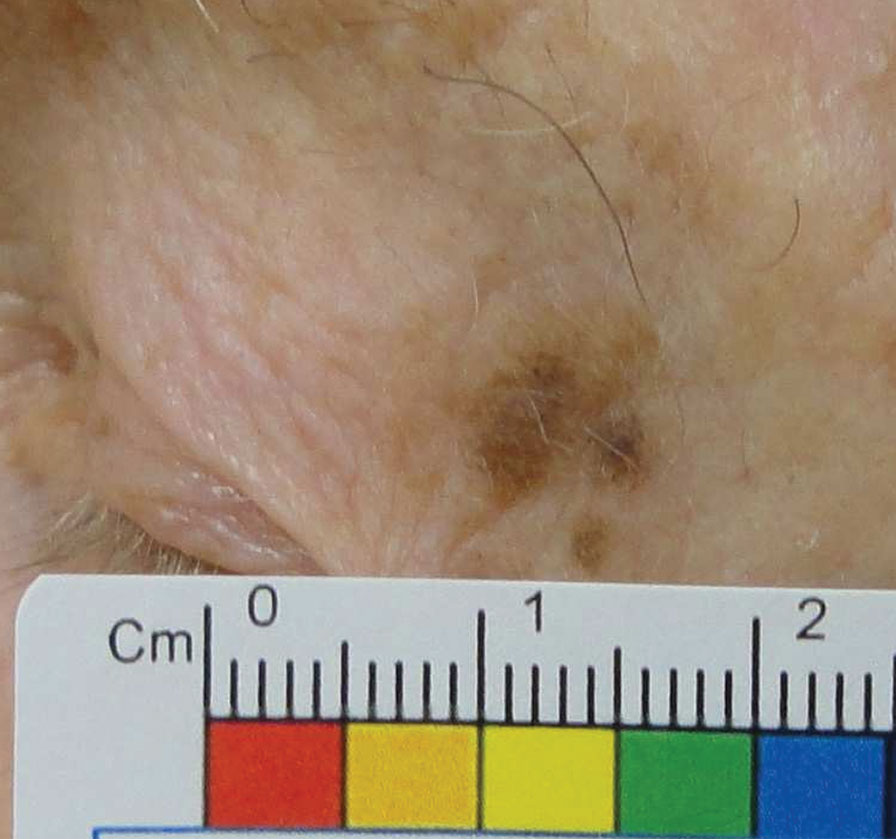 Melanoma in situ of the lateral upper eyelid. Note the lesion's asymmetry and irregular borders, satellite lesions and variable pigmentation.