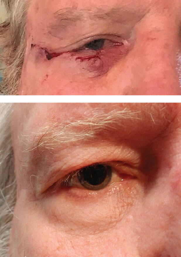 This patient had BCC of the lower eyelid. Above is the immediate post-op s/p Mohs micrographic surgery with Tenzel closure. At right is one year post-op.