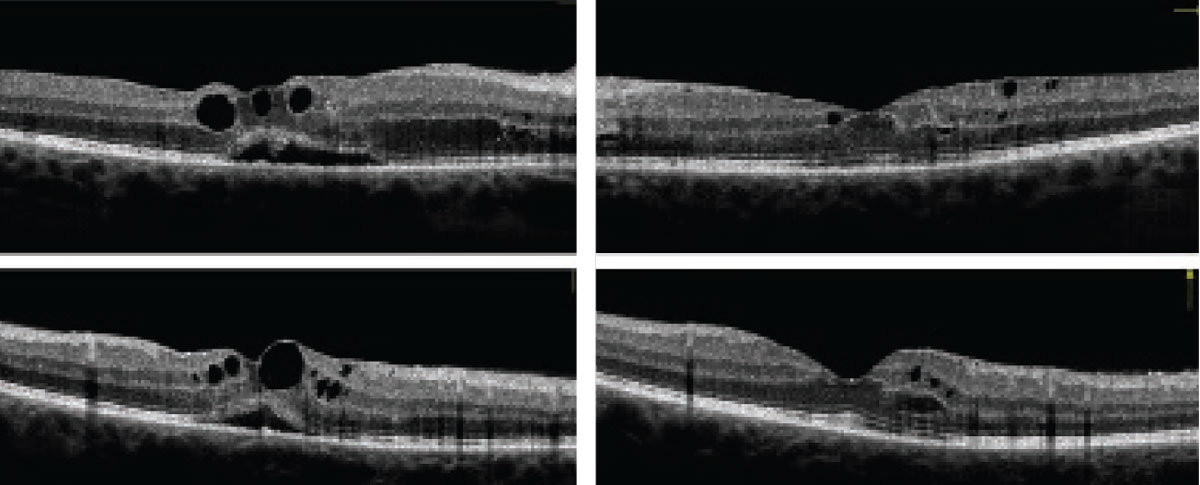 Can these OCT images of the right (at left) and left eyes reveal our 34-year-old patient's diagnosis?