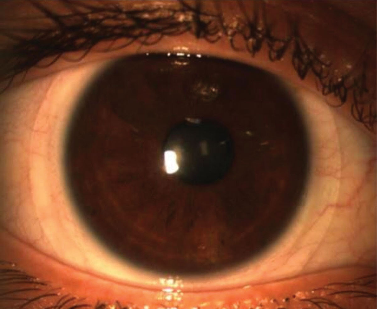 Scleral lenses could help address presbyopia and dry eye.