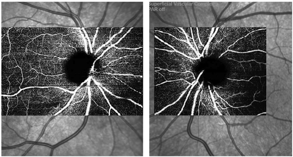 Fig. 3. OCT-A scans OD/OS from the Spectralis showing mild superotemporal capillary dropout OD.