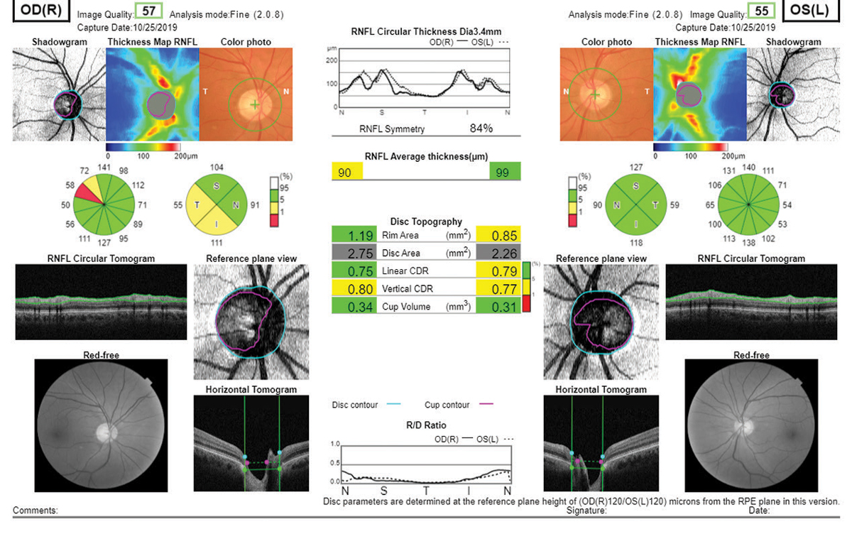 Fig. 9. Essentially every piece of diagnostic data a clinician might need is present in this Topcon Maestro2 report, including true color and red-free fundus photography.