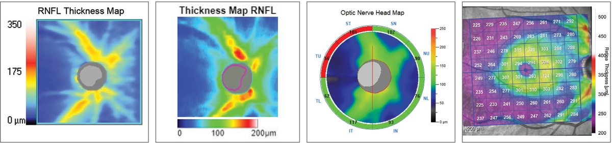 Fig. 10. RNFL thickness map comparison. Left to right: Zeiss Cirrus 6000, Topcon Maestro2, Optovue Avanti, Heidelberg Spectralis. The colors represent deviation from each device's normative database. The Topcon and Zeiss images highlight the RNFL wedge defect by the blue streaks superotemporally. All four instruments will ultimately detect the RNFL defect, but it comes down to personal preference in how you use the data and visuals to get there.