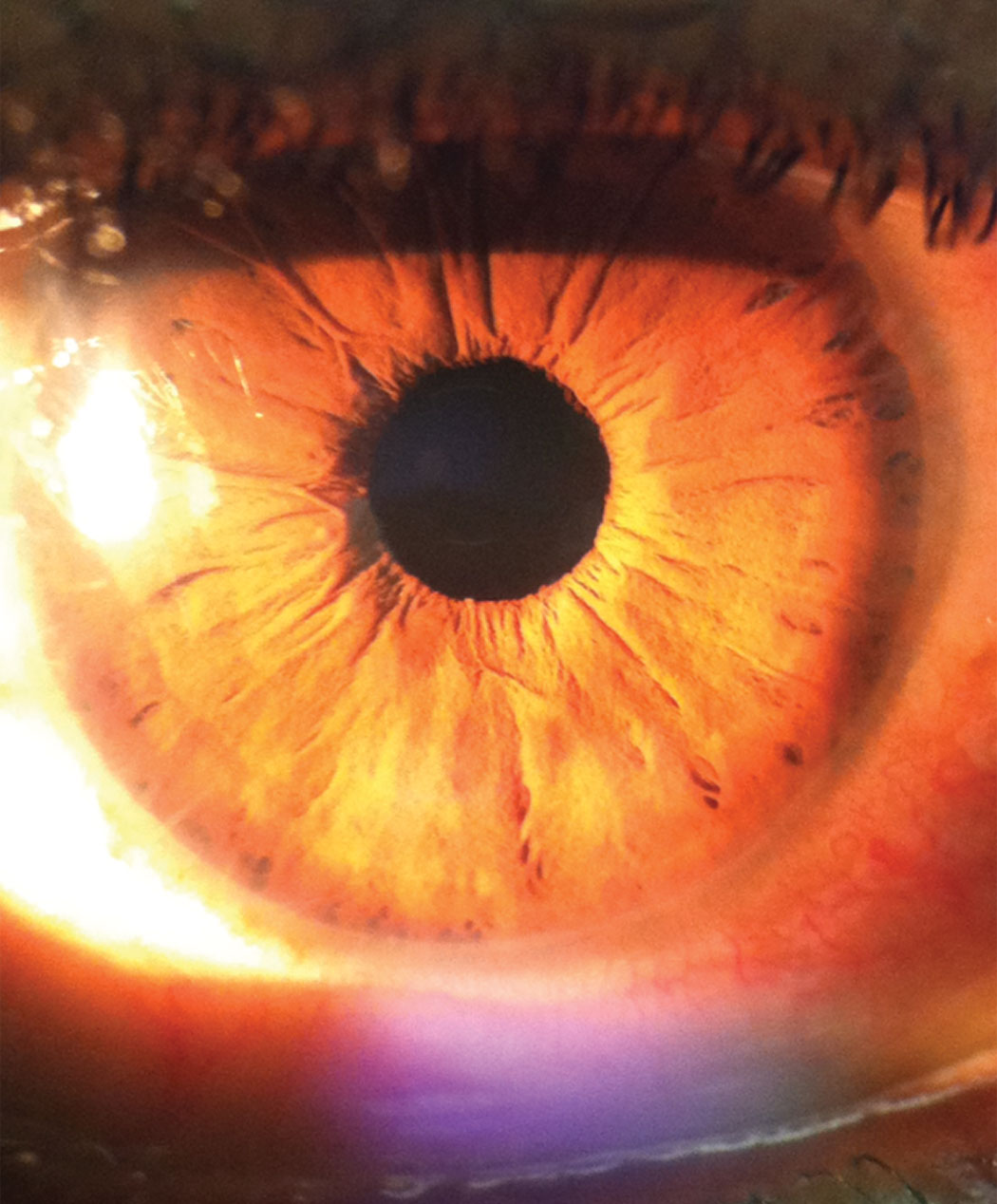 This photo of the patient's anterior presentation shows her unusual ring-shaped opacities in the peripheral cornea.