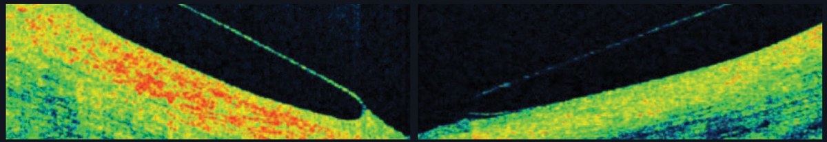 Fig. 6. AS-OCT shows a scleral lens edge with slight impingement into the conjunctiva (left) and an edge that lifts away from the conjunctiva (right).