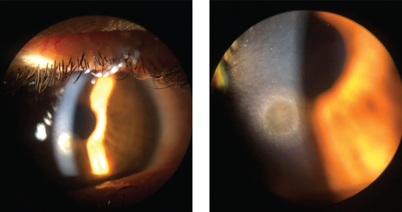 This patient is being seen at follow-up after a metallic foreign body was removed. While the epithelium has fully healed, there is a remaining rust ring.