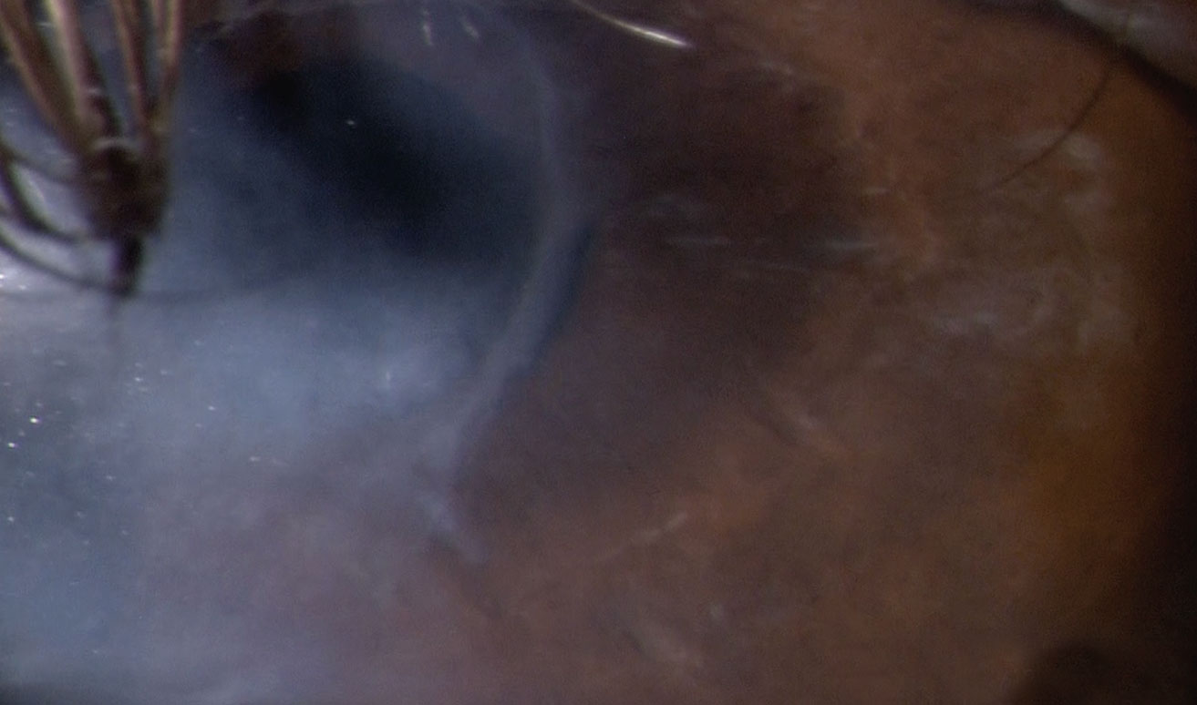 Case 4. A 78-year-old white male with stage two NK in the left eye was successfully treated with Oxervate over a 56-day treatment course. The patient had a history of herpes zoster with persistent epithelial defects for which he underwent a partial lateral tarrsorhaphy OS. Post-Oxervate therapy, there was full epithelialization, and the tarrsorphaphy was removed 90 days later due to continued corneal health and patient interest. Special thanks to Patrick McMannamon, OD, for the case.