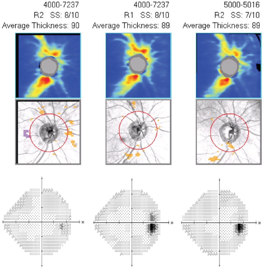 Case 6. This is the guided progression analysis (optic nerve head OCT) with visual fields (right eye only) of a 43-year-old black male who has been treated with Vyzulta for 25 months in both eyes. IOP has decreased 40% and has been consistent at follow ups since initiating the drug. His OCT and visual fields show no change over the 25-month period, indicating successful treatment.