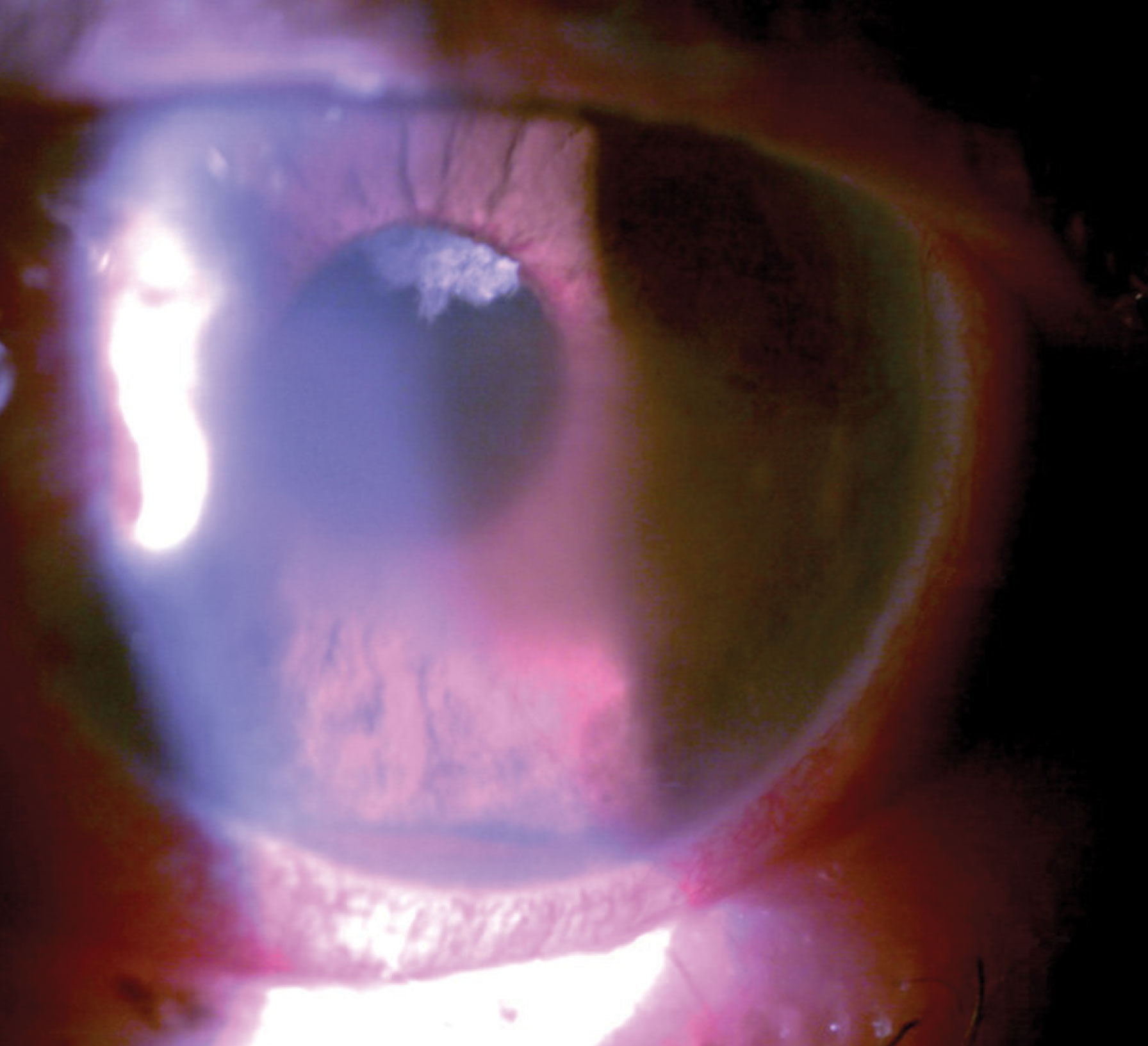 This patient had pain with vision loss and profound pathological findings such as hyphema, microcystic edema and peripupillary iris neovascularization.