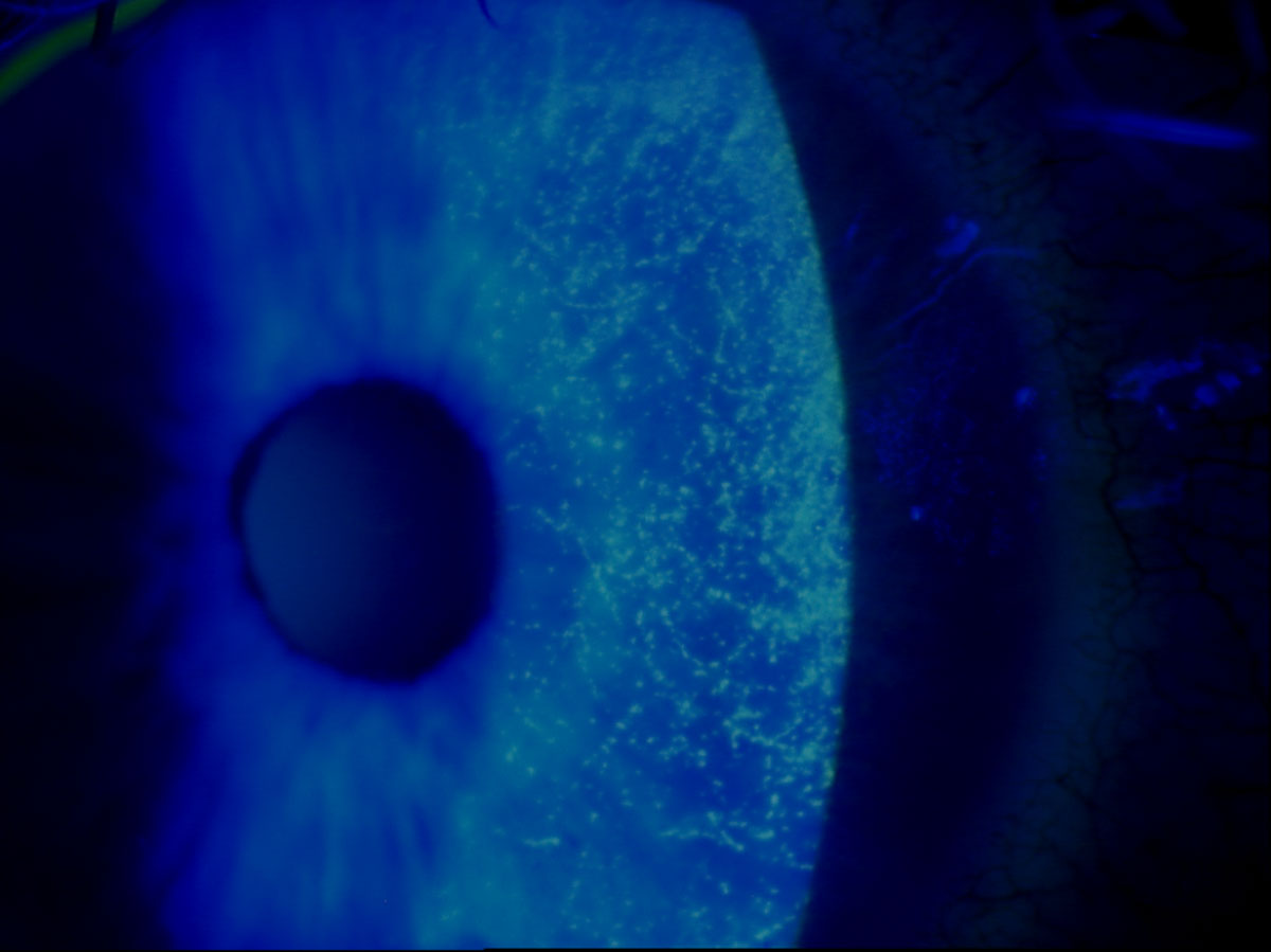 This slit lamp photo demonstrates sodium fluorescein staining of a patient's eye with punctate keratitis.