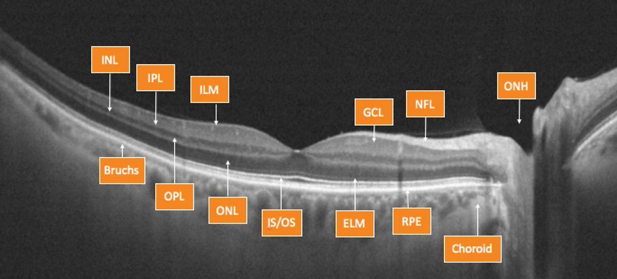 Fig. 2. OCT can help clinicians evaluate the retina, layer by layer.