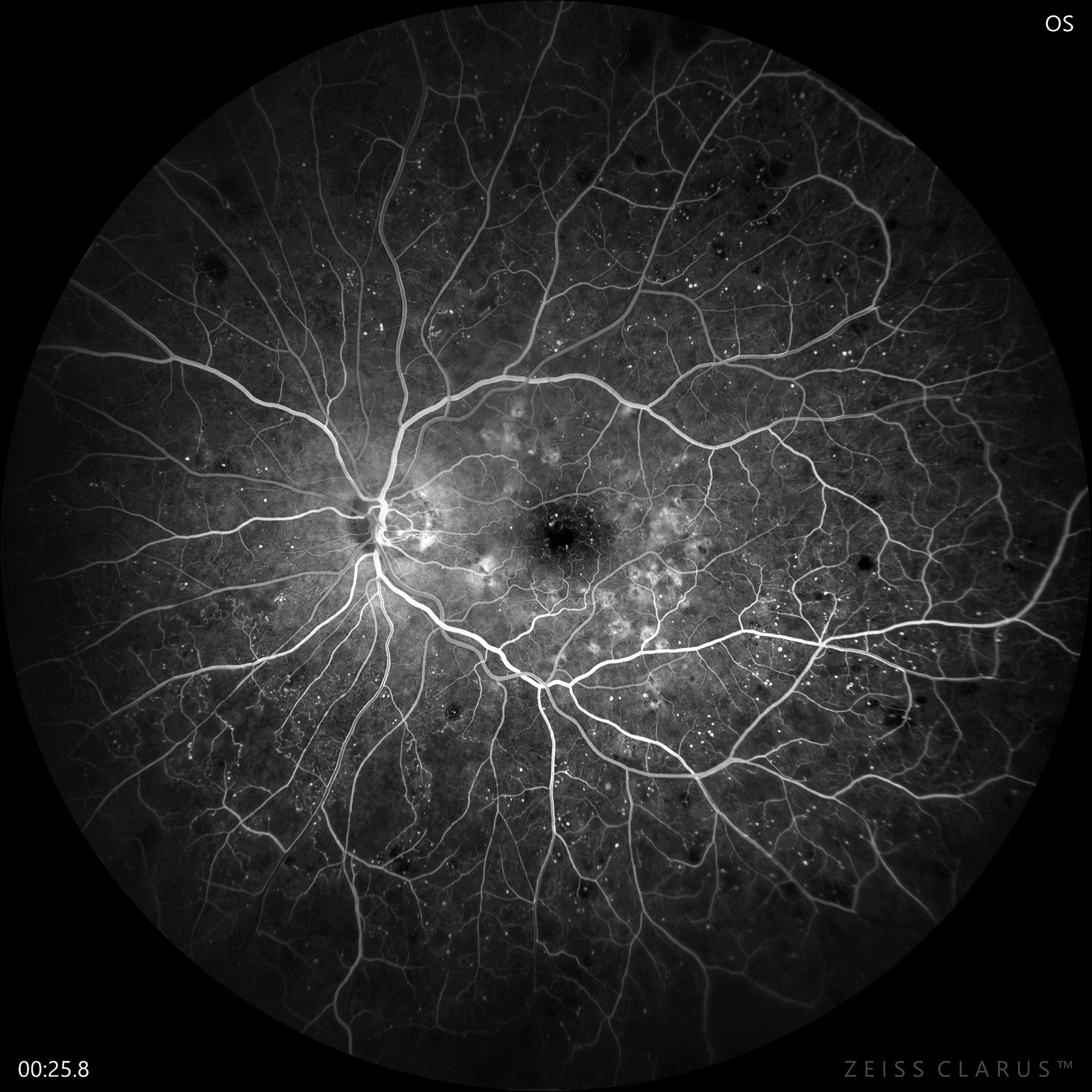 Fluorescein angiography confirms early PDR with significant non-perfusion and neovascularization of the disc.