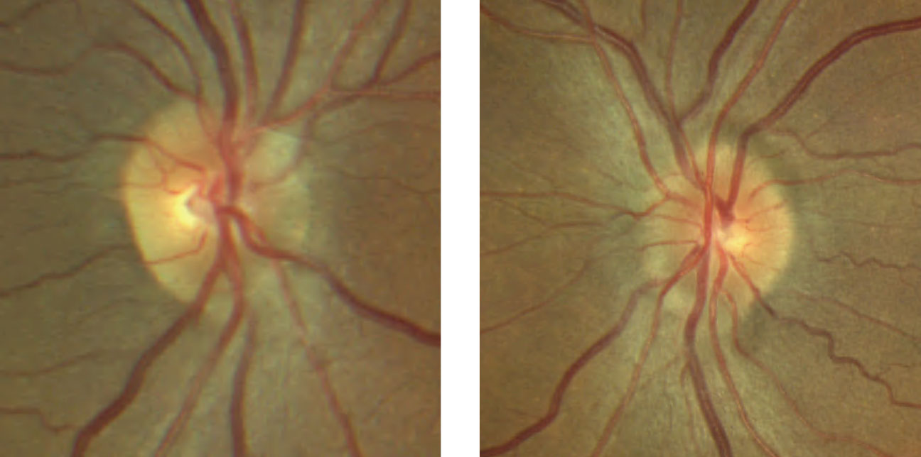 Despite unremarkable entrance testing with no visual complaints, the patient's optic disc evaluation shows mild elevation with sectoral blurred margins nasally and superiorly OU.