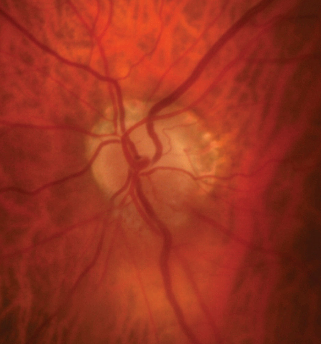 The patient's optic disc photo demonstrates inferior sectoral elevation with hyperemia. Additionally, there is sectoral pallor of the superior neuroretinal rim OS.