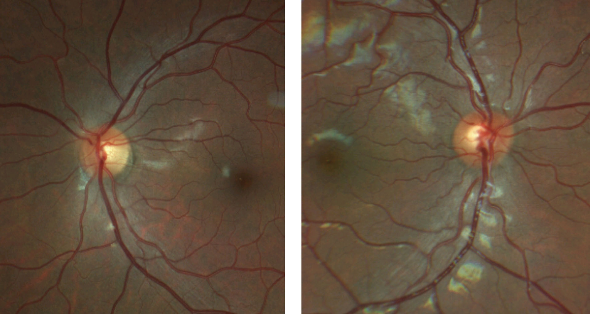 This patient's fundus photo suggests a pale temporal neuroretinal rim in the left eye.