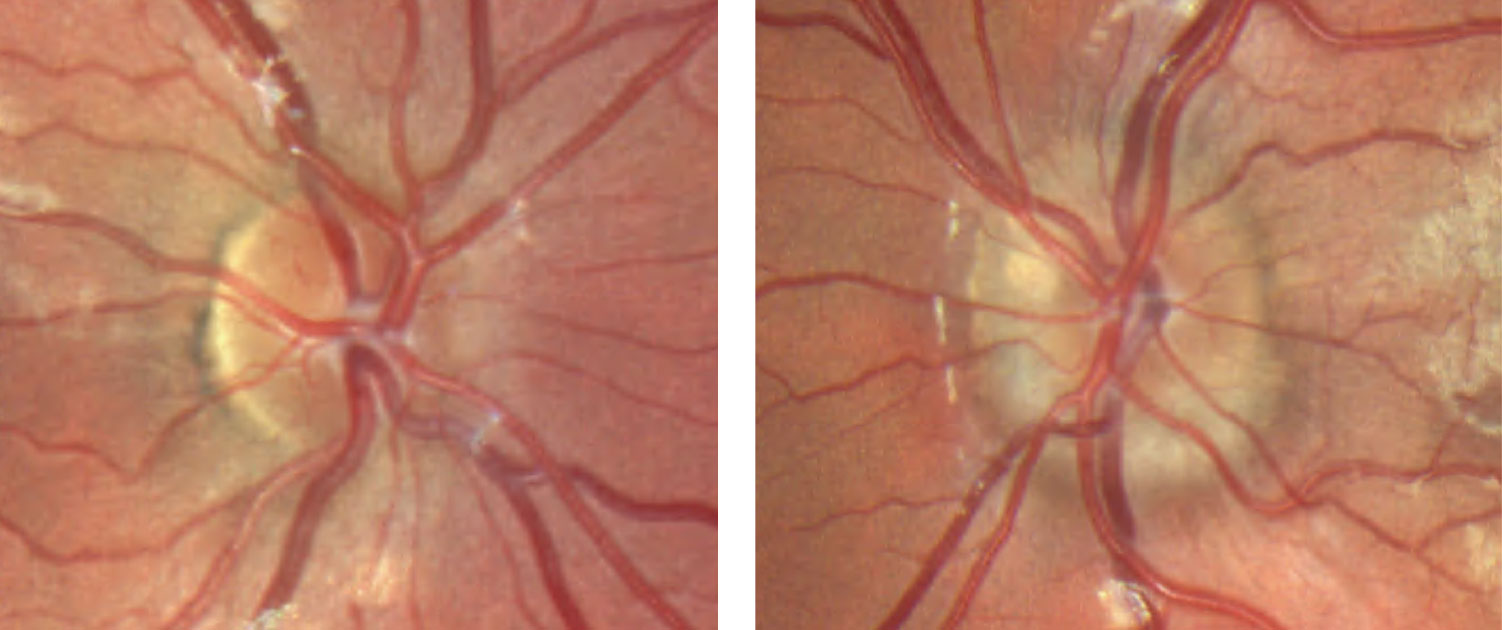 These color fundus photos of the optic discs show that the margins of the right optic disc, at left, are indistinct nasally but are otherwise preserved temporal. The left optic disc, at right, has more indistinct margins with a notable superficial druse superior nasal.
