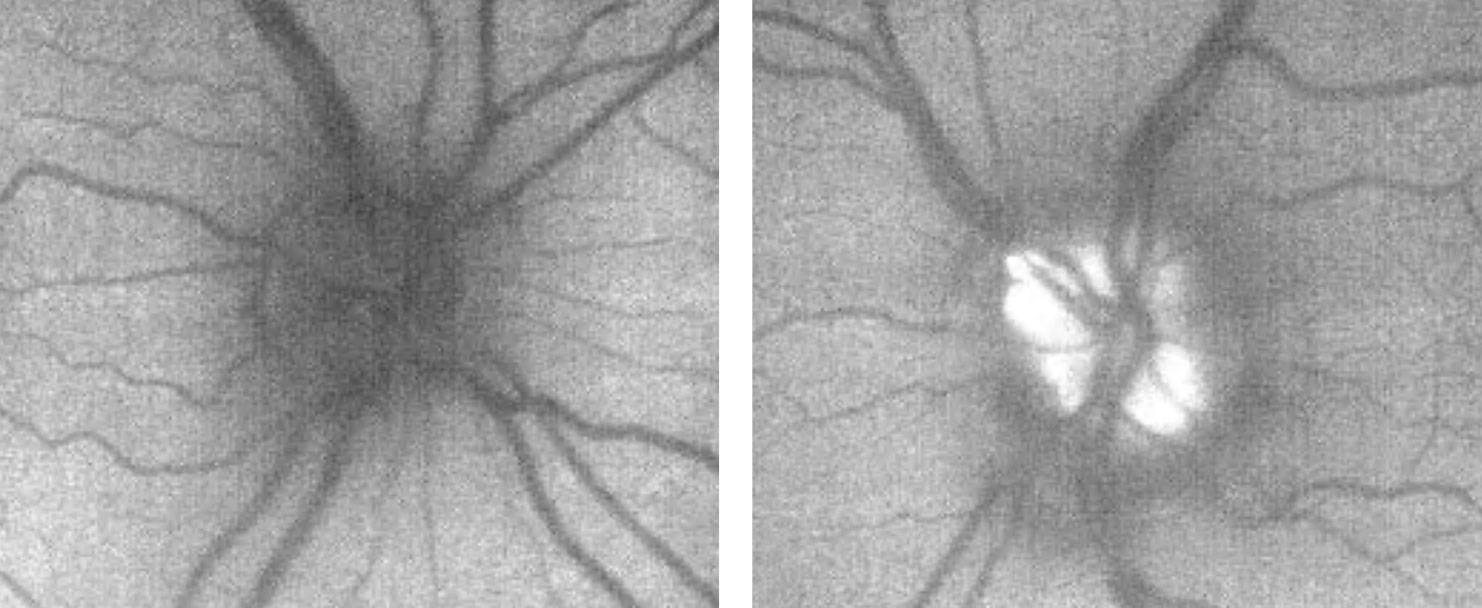 The patient's fundus autofluorescent photos demonstrate significant autofluorescence of the left optic disc, suggestive of more prominent drusen than what is evident funduscopically.