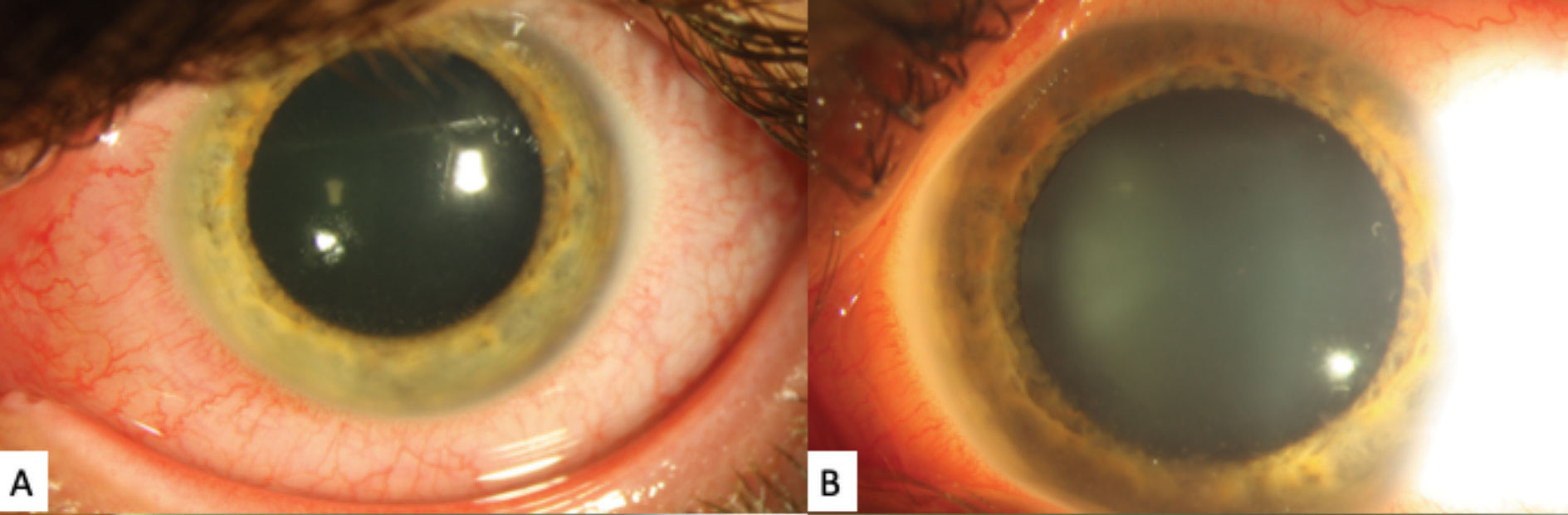 These gross external slit lamp photos of the patient's left eye shows significant diffuse episcleral injection. A faint posterior corneal opacities can be see, although the detail is poor.