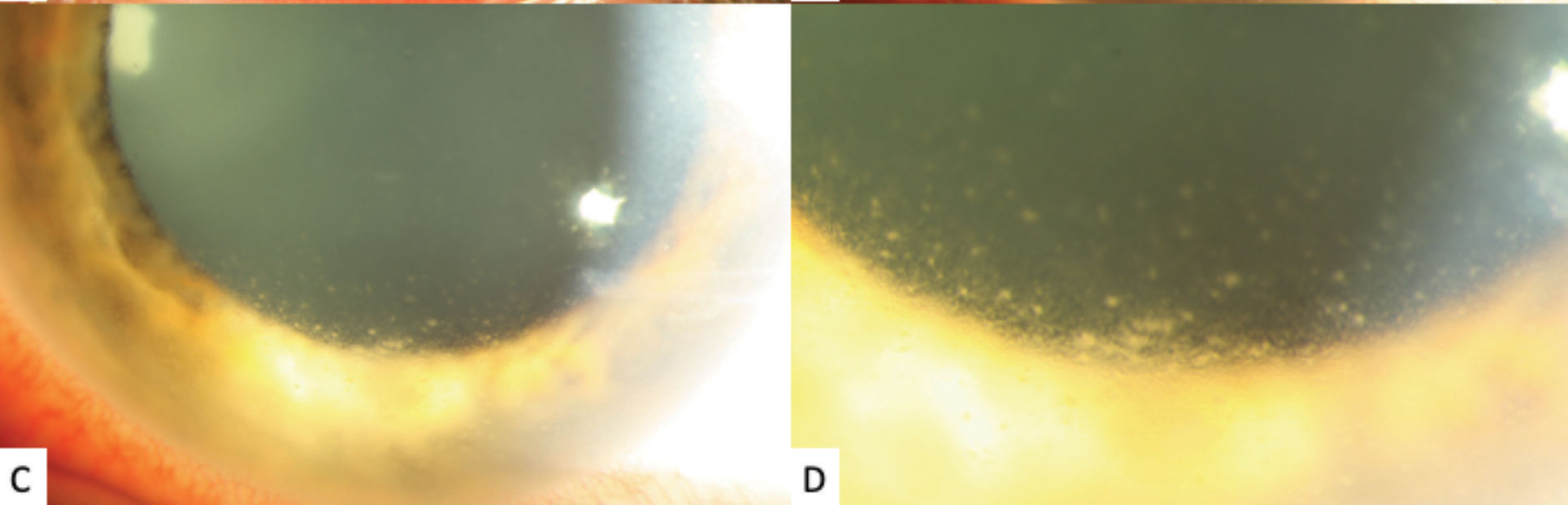 High-magnification slit lamp photographs of the left eye showing inferior stellate keratic precipitates on the lower half of the cornea.