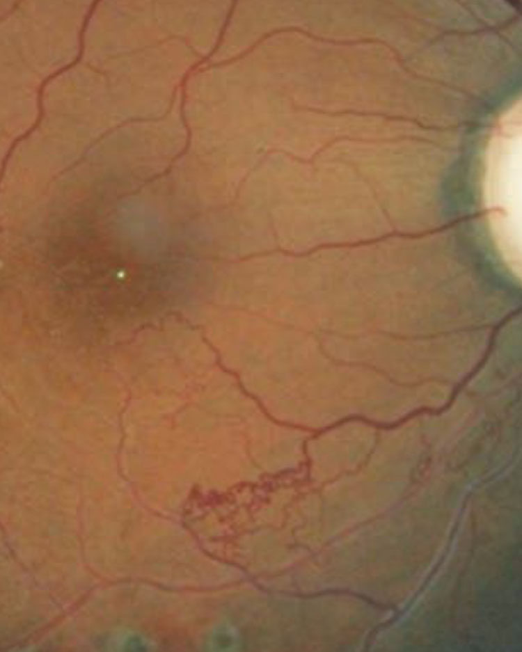 This patient's retina exhibits collateral vessels bypassing an occluded vessel.