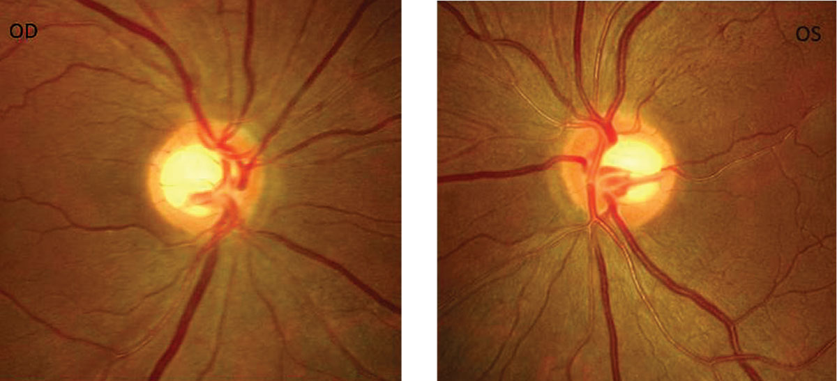 After a little roughhousing injured his eye, a patient's near vision got progressively worse for three years. Using this history, fundus photos and a gonioscopy exam, can you help identify why he suddenly needs reading glasses?