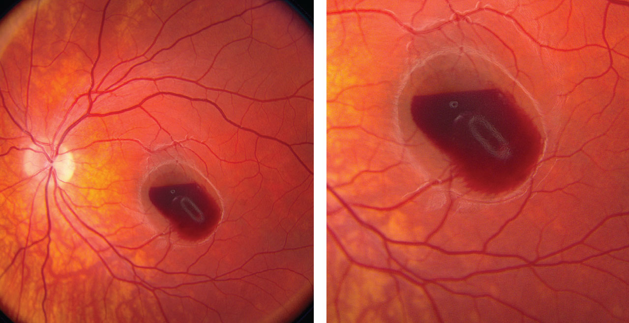 These fundus photos of the left eye show a retinal hemorrhage involving his macula. Where is the anatomic location of the blood?