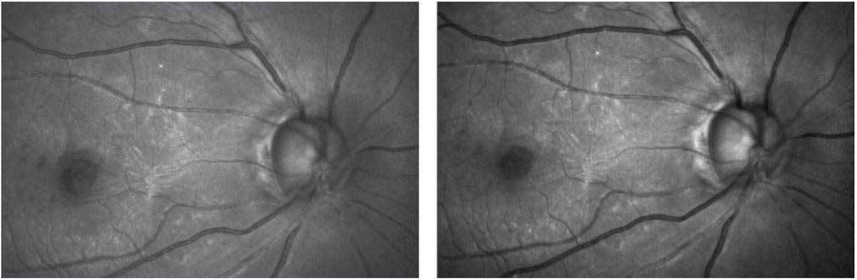 Figs. 2 and 3. Green laser imaging highlights the ERM and the foveal abnormality, at left. Blue laser reflectance imaging shows some fine striations remaining in the superotemporal sector of the arcuate retinal nerve fibers and very few nerve fibers remaining inferiorly.