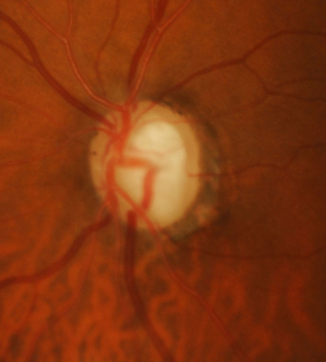 This patient has advanced disease OS. Late-stage glaucoma is associated with substantially worse quality of life.