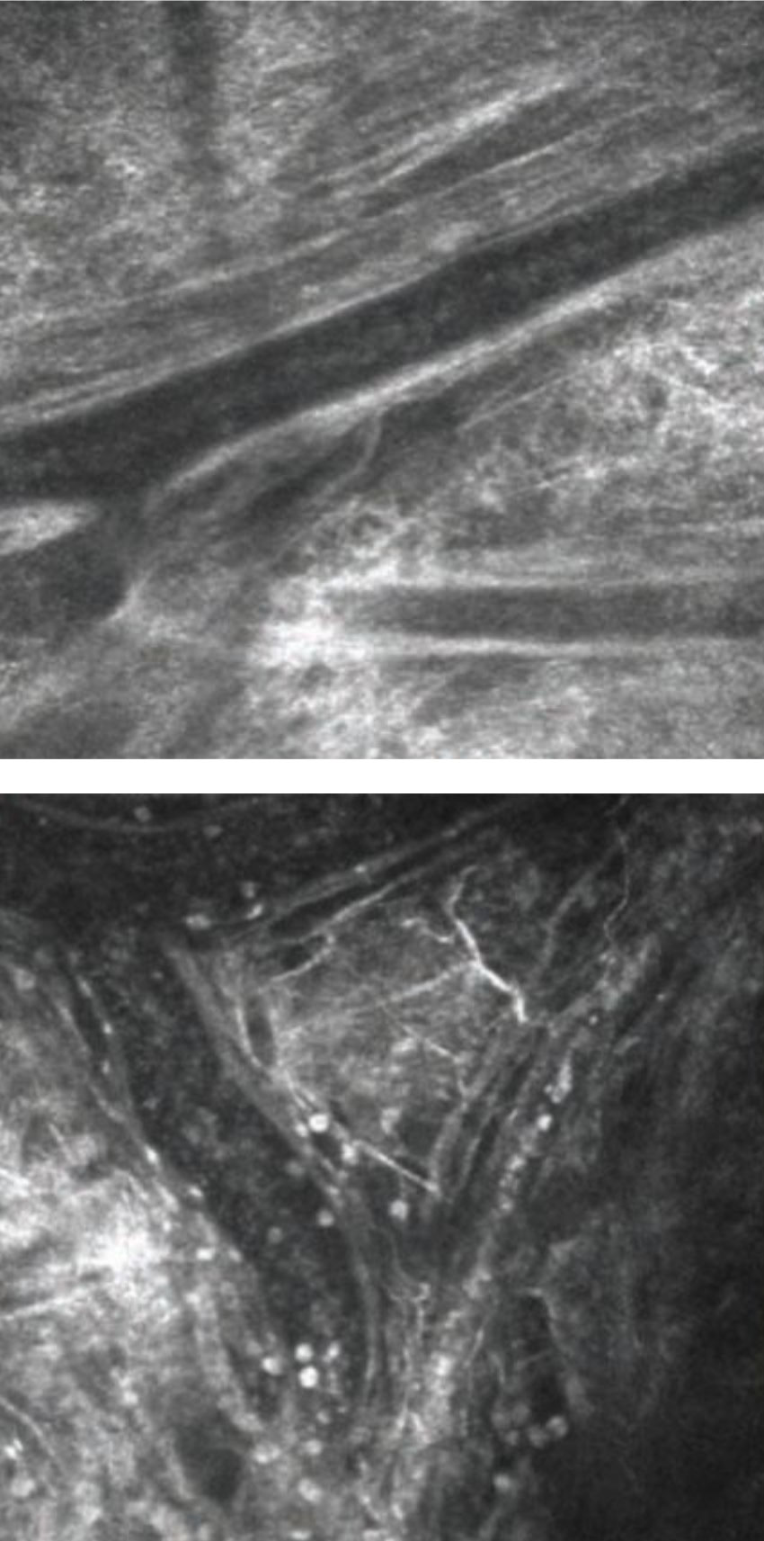In vivo imaging of conjunctival blood vessels before (left) and after (right) allergen challenge. White cells are clearly visible following challenge, and some of these can be see migrating out of vessels into extravascular space. Photo: Mark B. Abelson, MD, CM