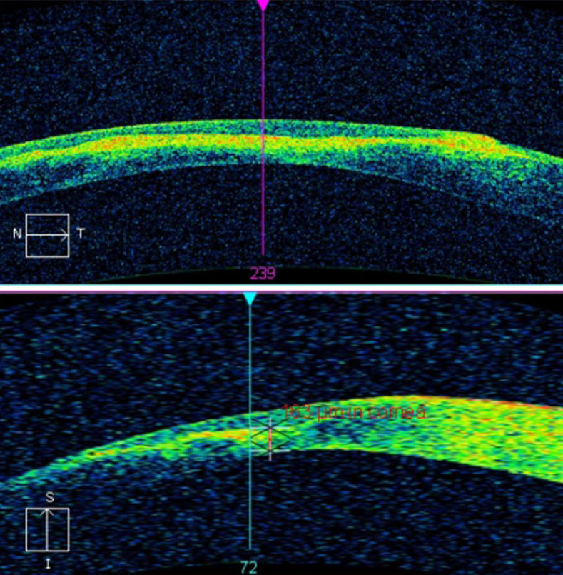 This AS-OCT scan of a 28-year-old Asian patient with advanced keratoconus and moderate-to-severe pain demonstrates intact endothelial and posterior stromal layers while showing increased reflectivity associated with stromal scarring. In this case, AS-OCT confirmed an intact endothelium and Descemet's membrane. As an added advantage, corneal thickness was measured accurately at the thinnest location using the caliper tool, thereby providing a reliable baseline for follow-up comparison. In light of the anatomical state of the cornea, the patient's symptoms were attributed to epithelial disruption overlying the apex of corneal steepening. Photo: Carolyn Majcher, OD