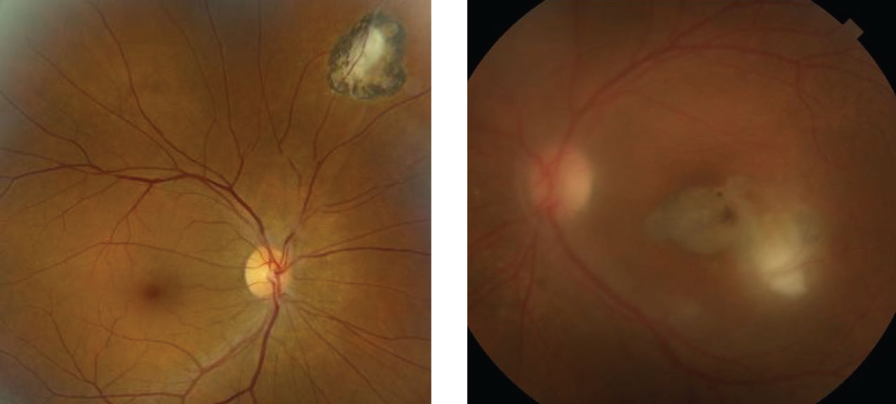 These are the right and left eyes of our patient. What does the hazy view in the left eye represent?