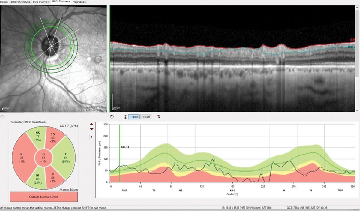 The 3.50mm diameter RNFL scan demonstrates classic superotemporal and inferotemporal RNFL thinning in the left eye. Note the lack of change from baseline (gray).