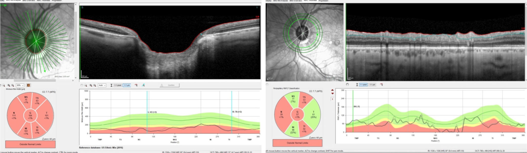 Bruch's membrane opening (left) and retinal nerve fiber layer (right) follow-up scans demonstrate significant neuroretinal rim and retinal nerve fiber layer damage, but with no progression from baseline.