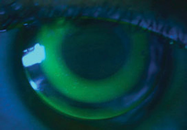 Ortho-K is one lens option for patients undergoing myopia management.