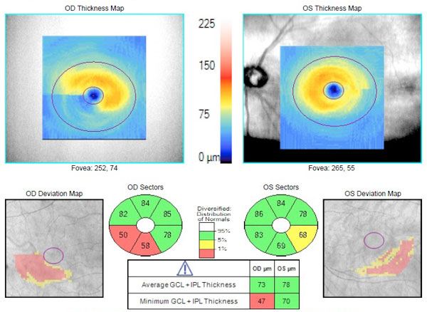 Maximizing OCT in the Diagnosis and Management of Glaucoma